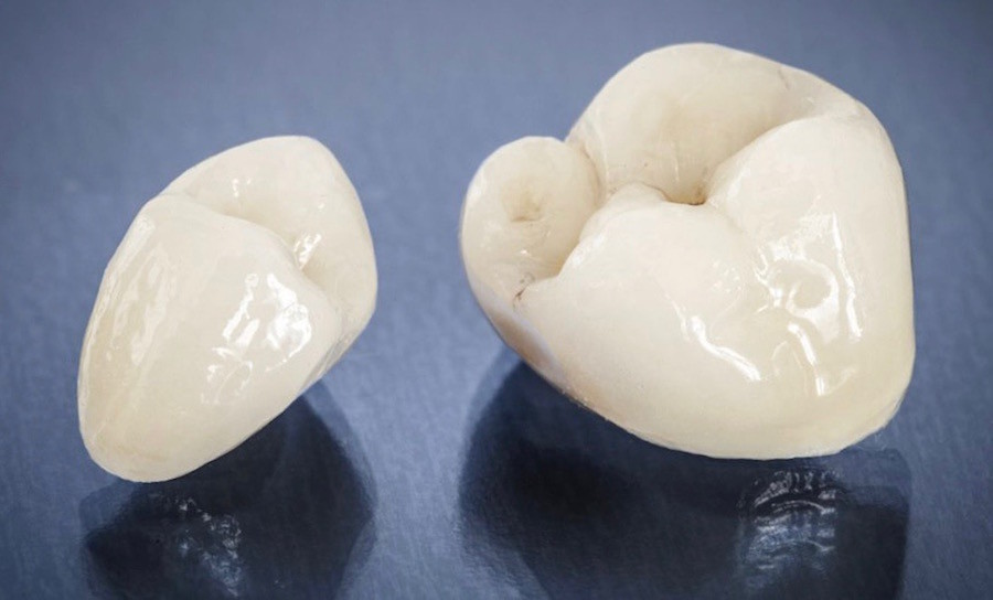 When Does a Tooth Need a Crown